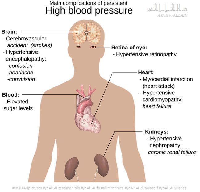 what is high blood pressure hypertension arteries flow natural remedies