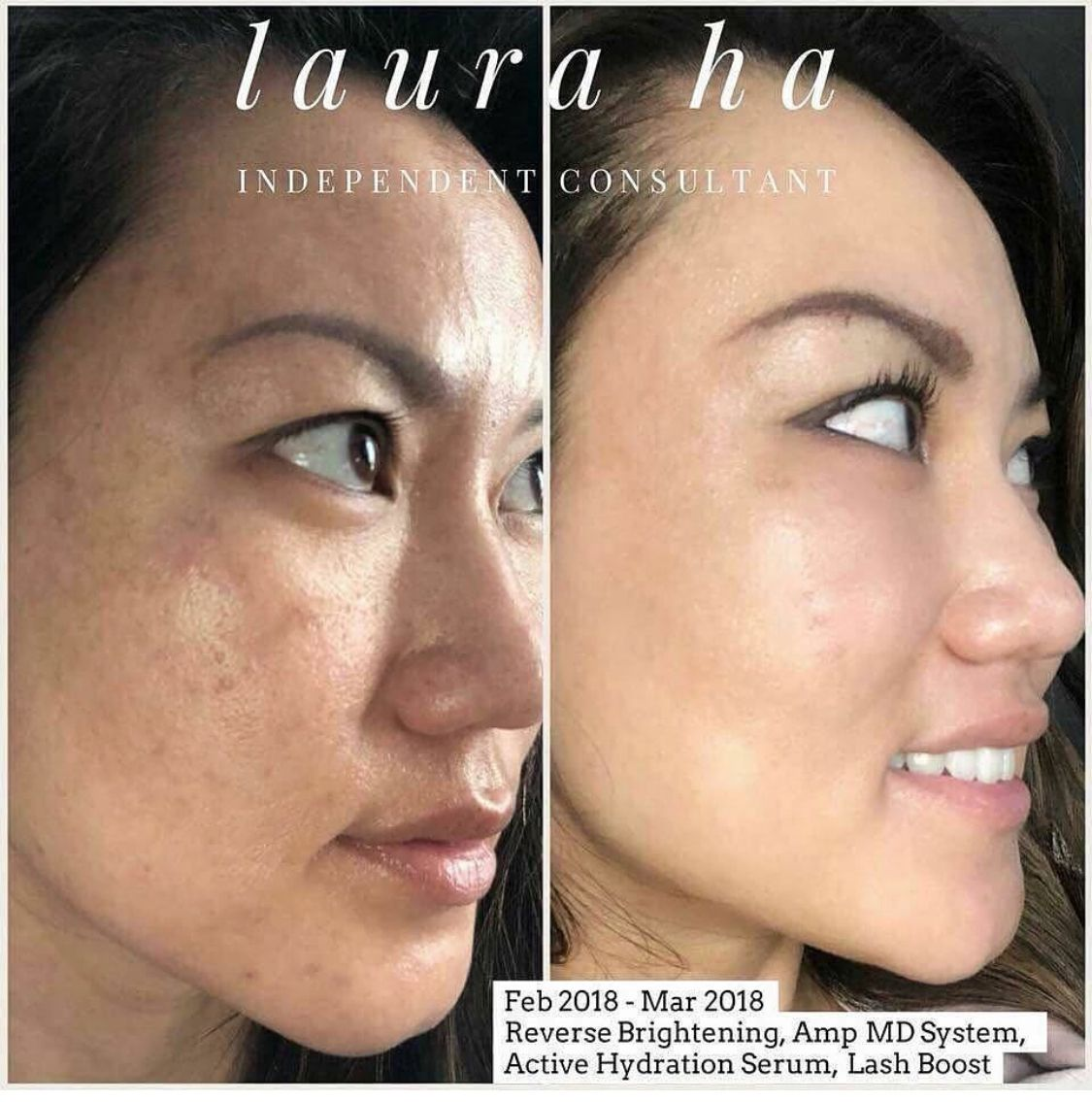 Reverse Brightening Regimen Is A 4 Step Skin Care Routine To Treat Dull Complexion Uneve Rodan And Fields Regimen Rodan And Fields Rodan And Fields Consultant