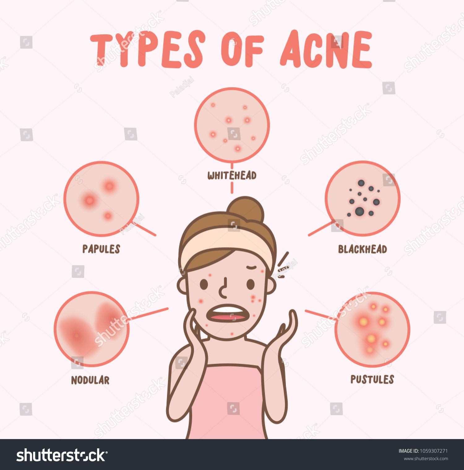 Types Of Acne With Woman Cartoon Illustration Vector On Pink