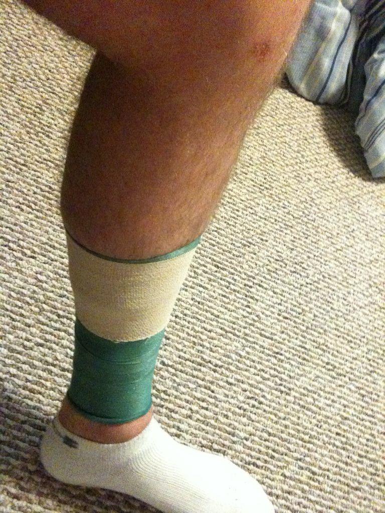 Tape Shin Splints Shin splints, Shin splint exercises
