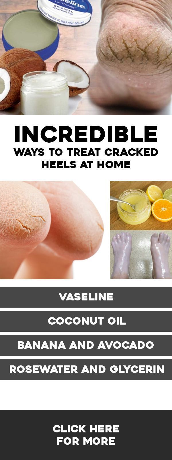 Cracked heels are a common problem. As survey claims, more than 20% of all the adults in the US have cracked skin on their feet. Besides, adults are not the only ones who face this problem, #HardSkin #HardSkinBakingSoda #crackedskinonheels