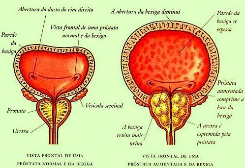 vesícula seminal e próstata