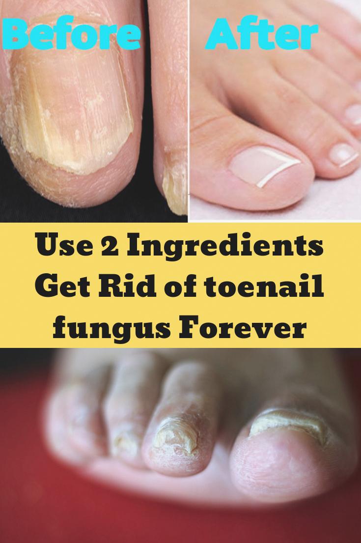 Use 2 Ingredients Get Rid Of Toenail Fungus Forever Fungus Getridof Toenail Toenailfungus H In 2020 Nail Fungus Treatment Toenails Nail Fungus Cure Toenail Fungus