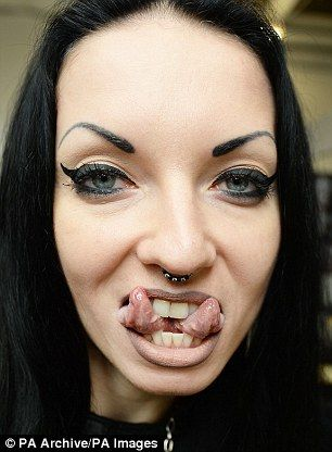 Doctors warn 'horrific consequences' over tongue-splitting trend