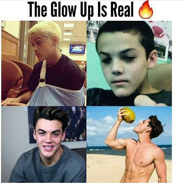 Puberty hit him like a truck (as well as Ethan too btw)
