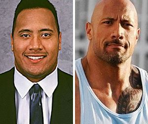 Top 10 Male Celebs You Didnt Know Had Plastic Surgery Before And