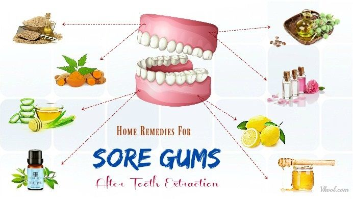 27 Home Remedies For Sore Gums After Tooth Extraction Gum Disease Treatment Home Remedies For Skin Gum Disease