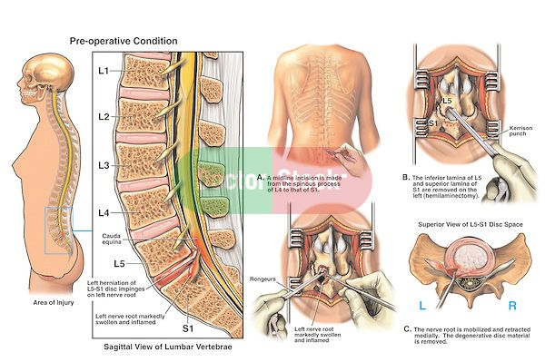 Back Surgery - L5-S1 Disc Herniation with Hemilaminectomy and ...