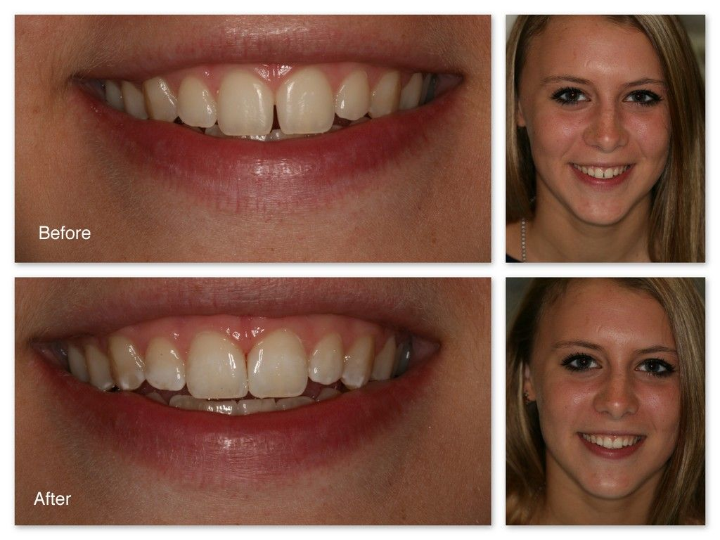 How to close teeth gap without expensive braces with
