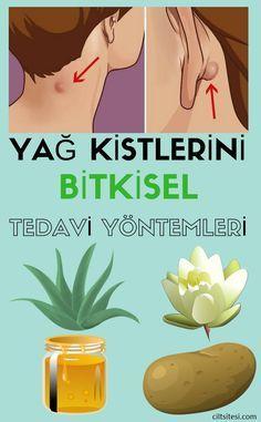Yağ Kisti Bitkisel Tedavi Yöntemleri Health Natural Health