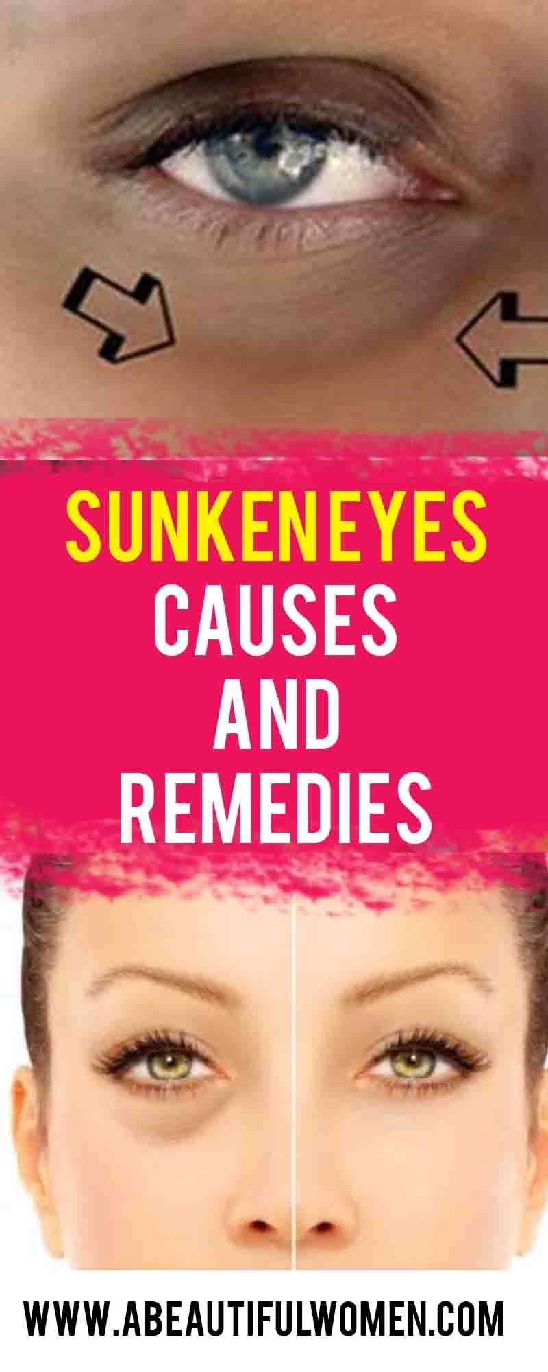 Sunken eyes mainly appear with aging and can happen due to ...