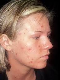 vitamin b5 acne results