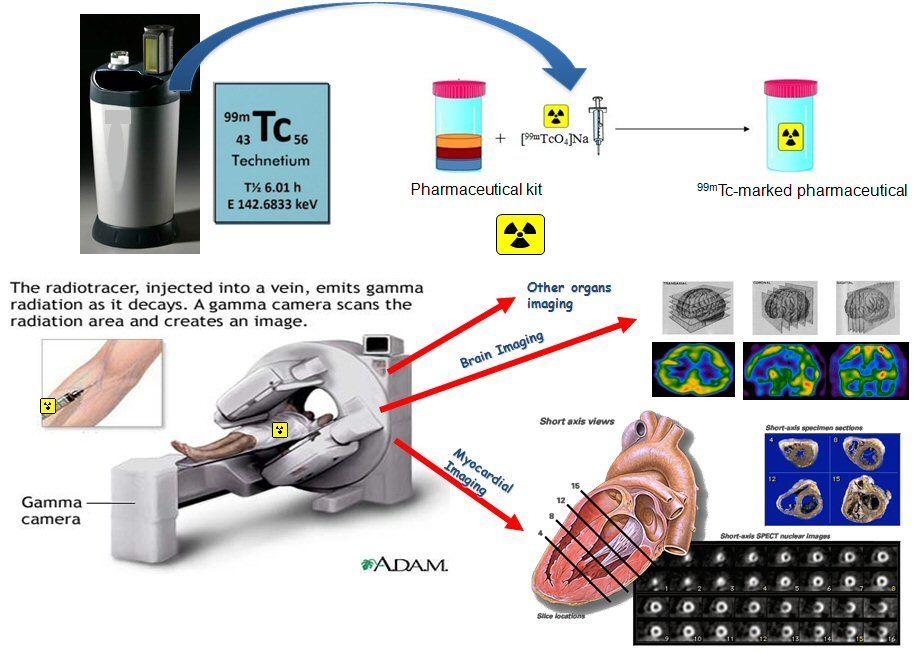 imaging (99mTc) for cardiac