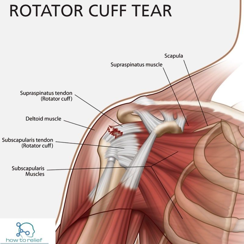On This Pagesymptoms Of A Rotator Cuff Tearcauses Of A Rotator Cuff