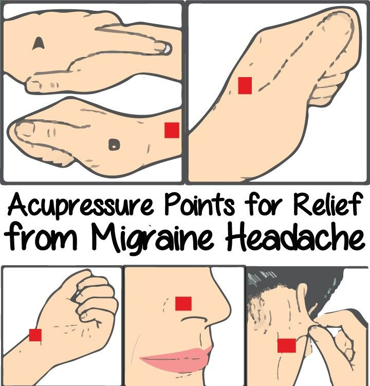 Acupressure points for relief from migraine headache health acupressure is also called acupuncture without needles here we will discuss about acupressure points for headaches and migraines solutioingenieria Images
