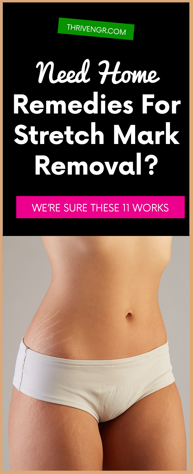 Need Home Remedies Stretch Mark Removal These  Works  PD S