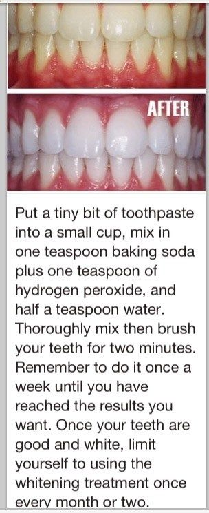 Pin By Michelle Thompson On Beauty Tips In 2018 Pinterest Teeth
