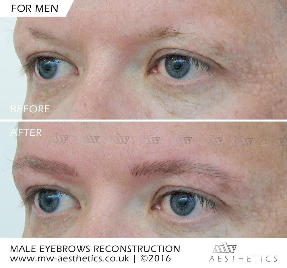 Alopecia Hair Loss Male Eyebrow Reconstruction Body Grooming
