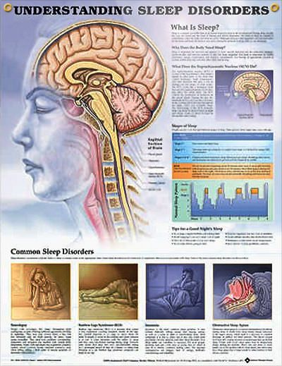 Understanding Sleep Disorders anatomy poster describes the five phases of sleep and outlines common sleep disorders.