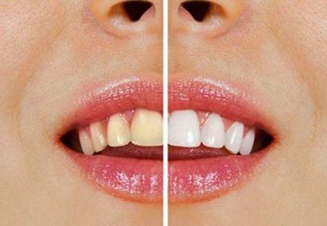 992a3a531 Notícias  Como clarear os dentes com produtos naturais