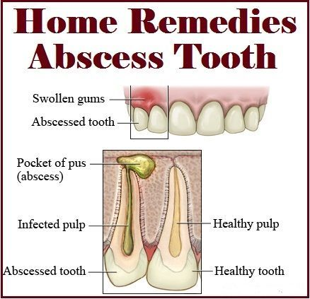 Abscessed Tooth Home Remedy For Dogs