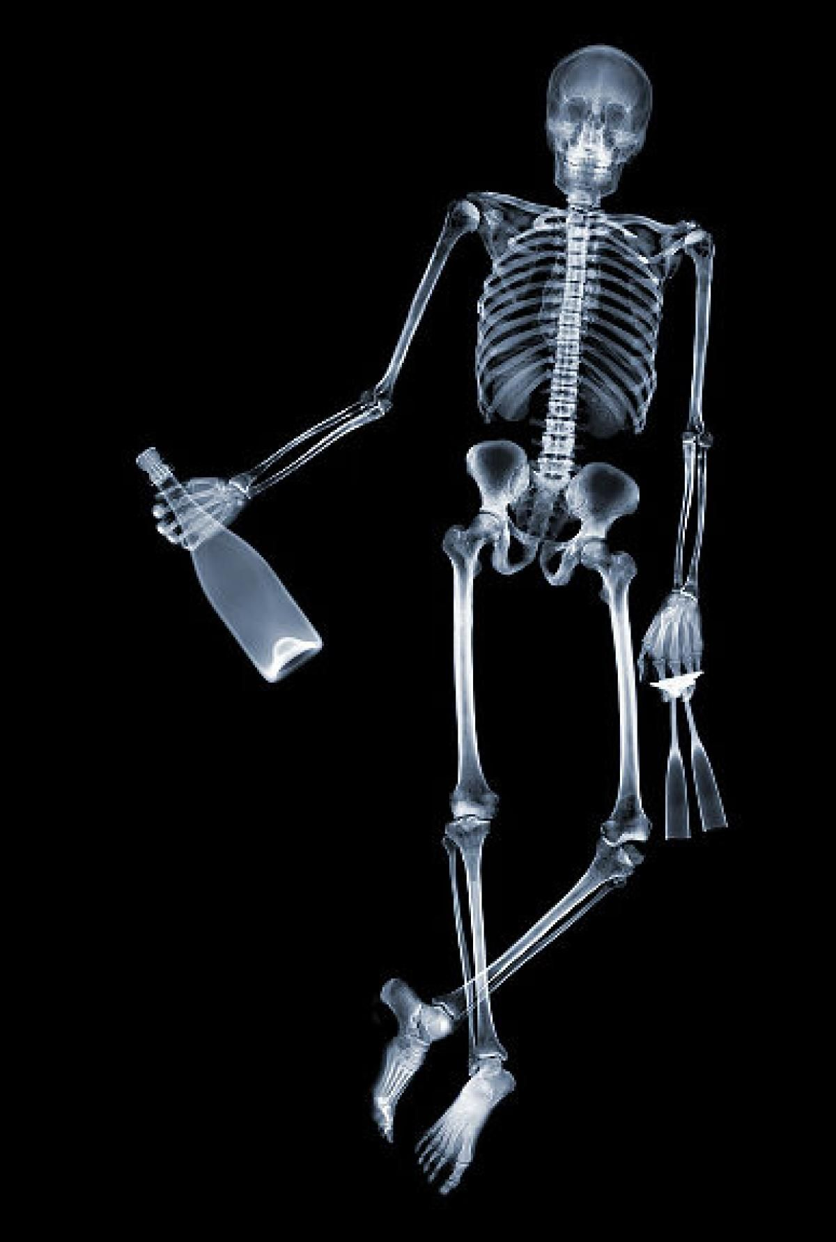 X Treme Art X Rays Turned Into Amazing Art Project