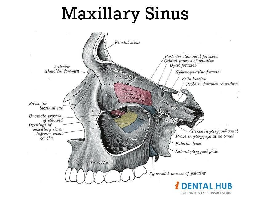 Pressure in right maxillary sinus Dental Care @ Identalhub