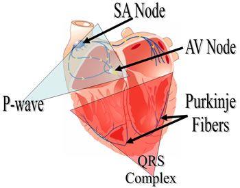 EKG Complex