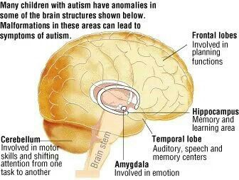 Anomalies in Autism Brain