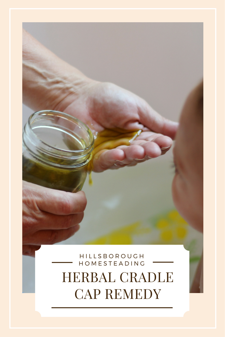 How To Treat Cradle Cap With Herbs From Your Backyard Herbalism Natural Home Remedies Herbal Medicine