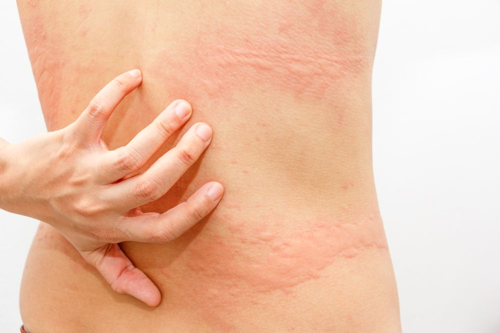 Urticaria And Fibromyalgia Fibromyalgia Rash Chronic Fatigue