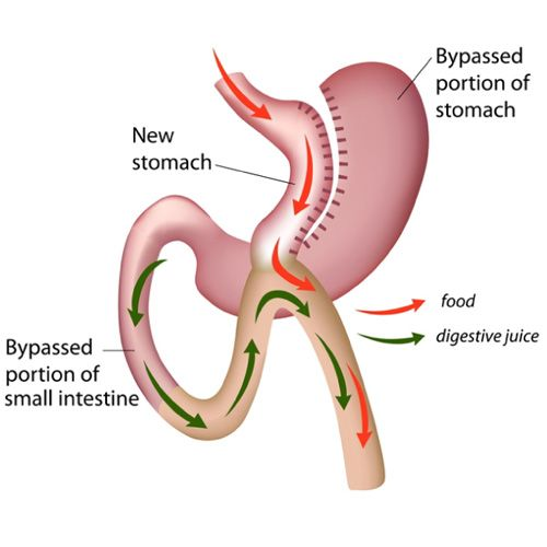 Image result for mini gastric bypass diagram