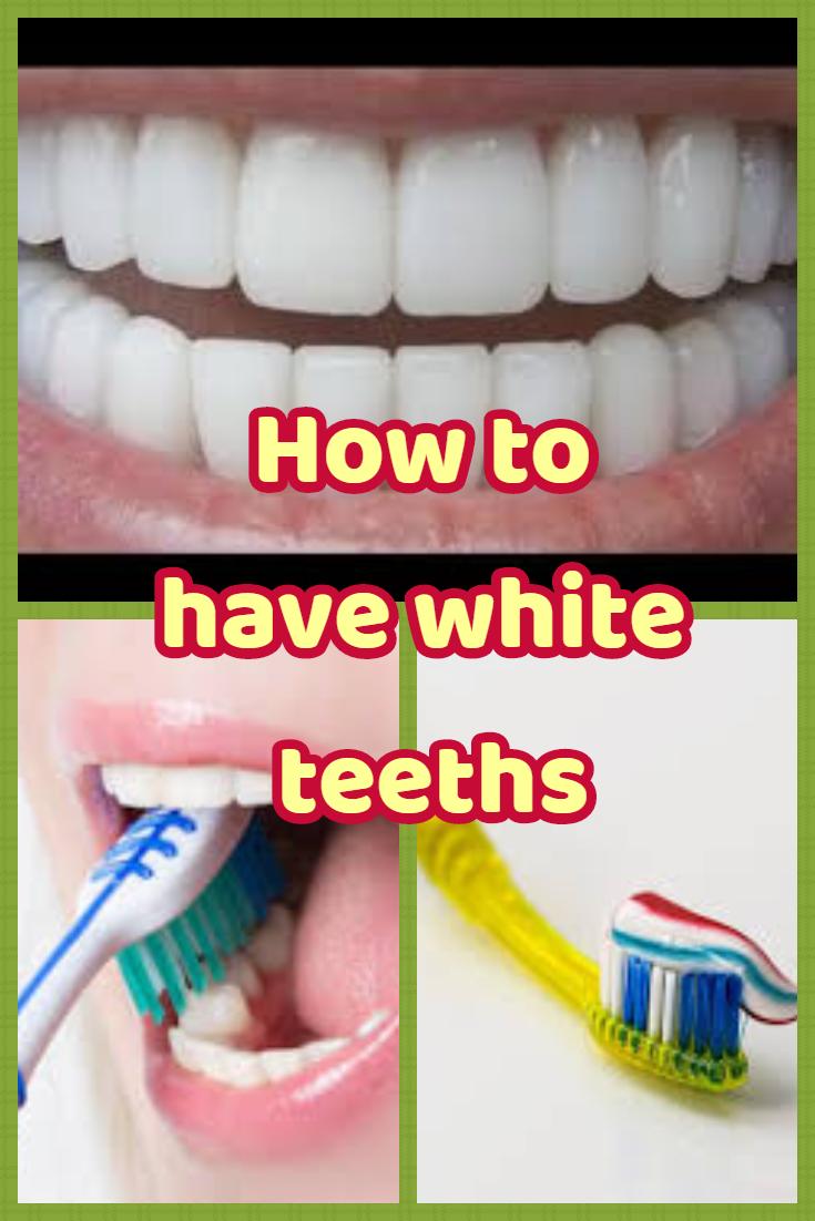 #Teethwhitening