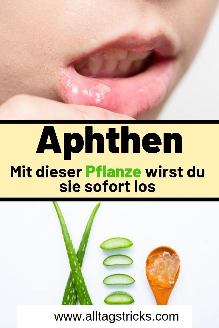 Aphten Zunge Hausmittel