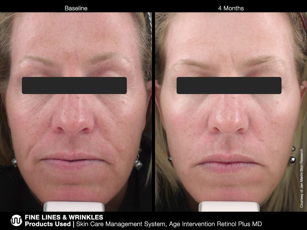 Pin On Serious Skin Care Before And After