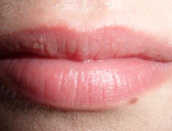f69887d9147482c0283c34af2978912f - How To Get Rid Of Small White Bumps On Lips