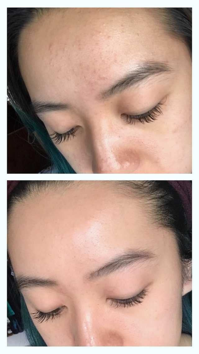 Redditor With Fungal Acne Shares Her Dramatic Before And After Photos Acne Routine Moisturizer For Oily Skin Forehead Acne