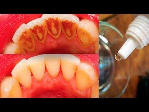 Isto Vai Eliminar Todo O Tartaro E Deixara Seus Dentes Com Um