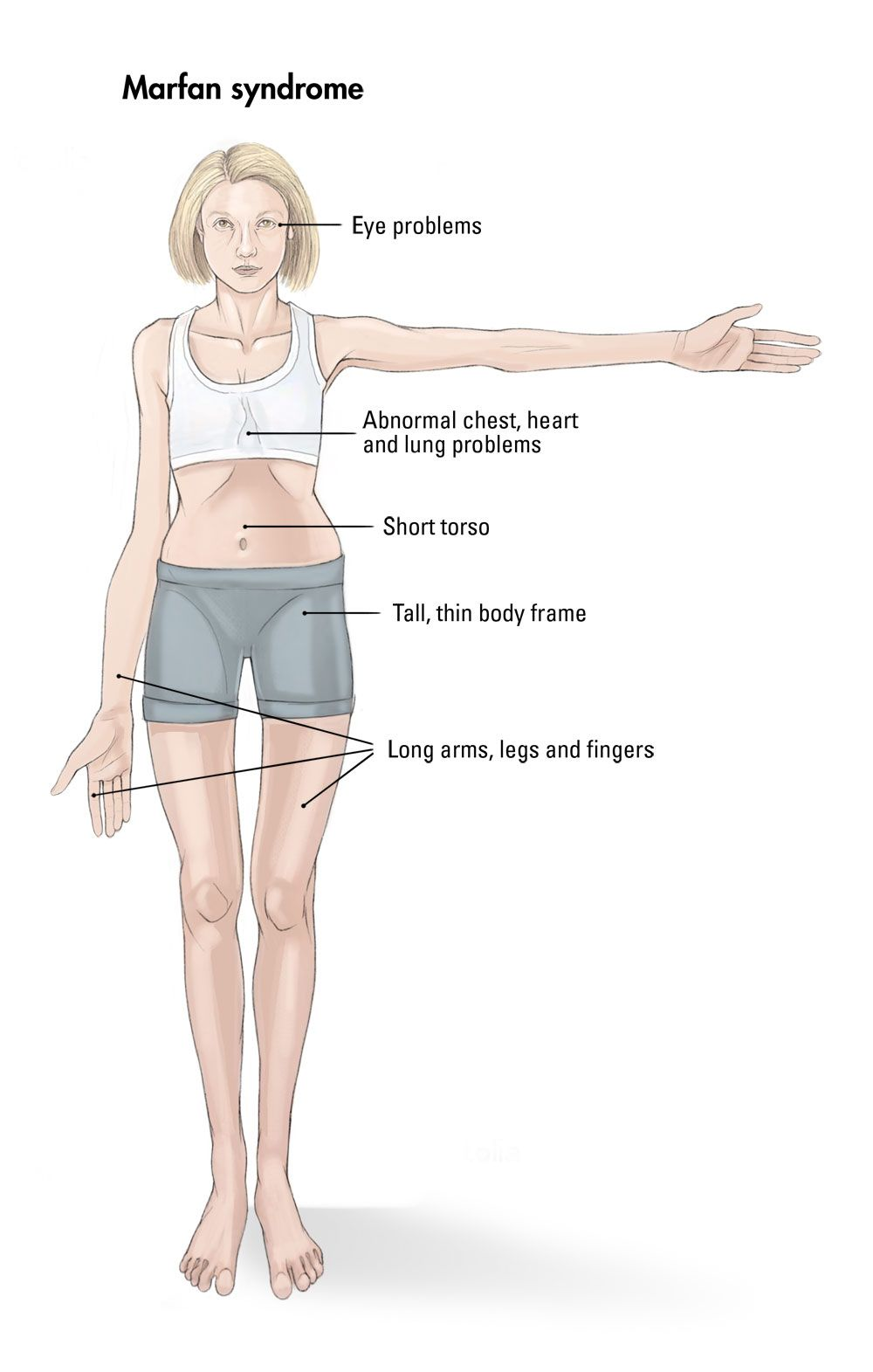 Marfan Syndrome Arm Span