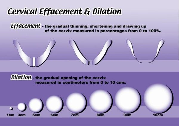 Cervical Dilation And Effacement Dilation And Effacement Cervix Cervix Dilation Chart