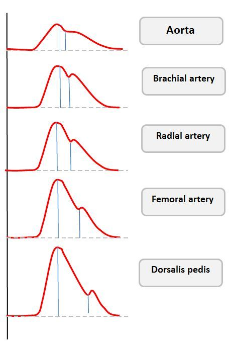 The Arterial Line : Difference in arterial waveforms according to site of