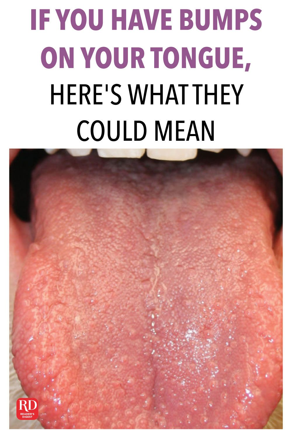 If You Have Bumps On Your Tongue Here S What They Could Mean Tongue Health Tongue Sores Bumps On Tongue