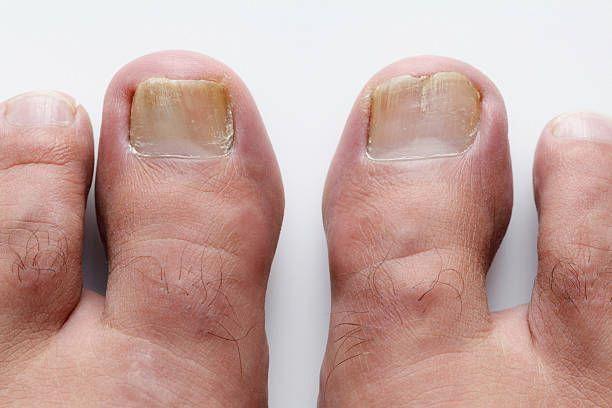 How To Treat Nail Fungus From Acrylic Nails Toenail Symptoms Treatment Yellowtoenailfungustreatment