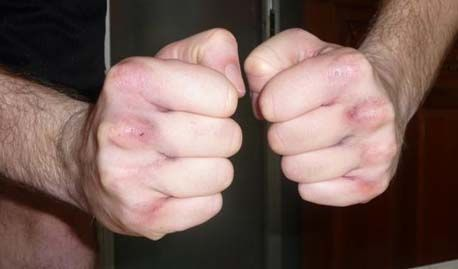 Real Bruised Knuckles From Punching A Hard Bag With Bare Hands