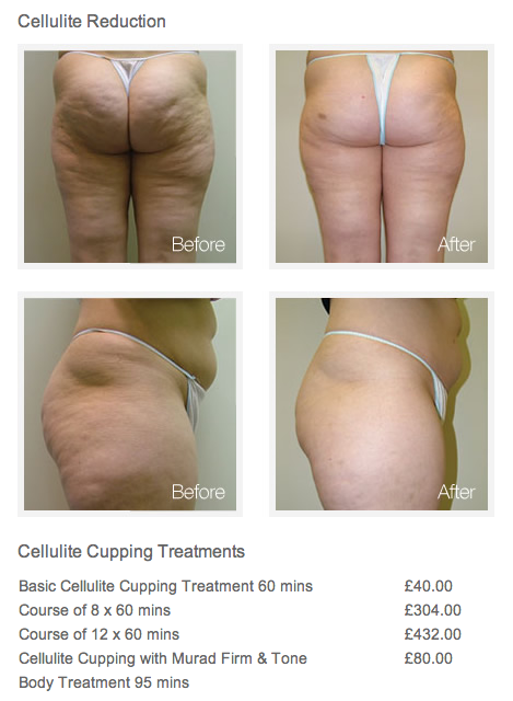 Proof That Cupping Anti Cellulite Treatment Works Click
