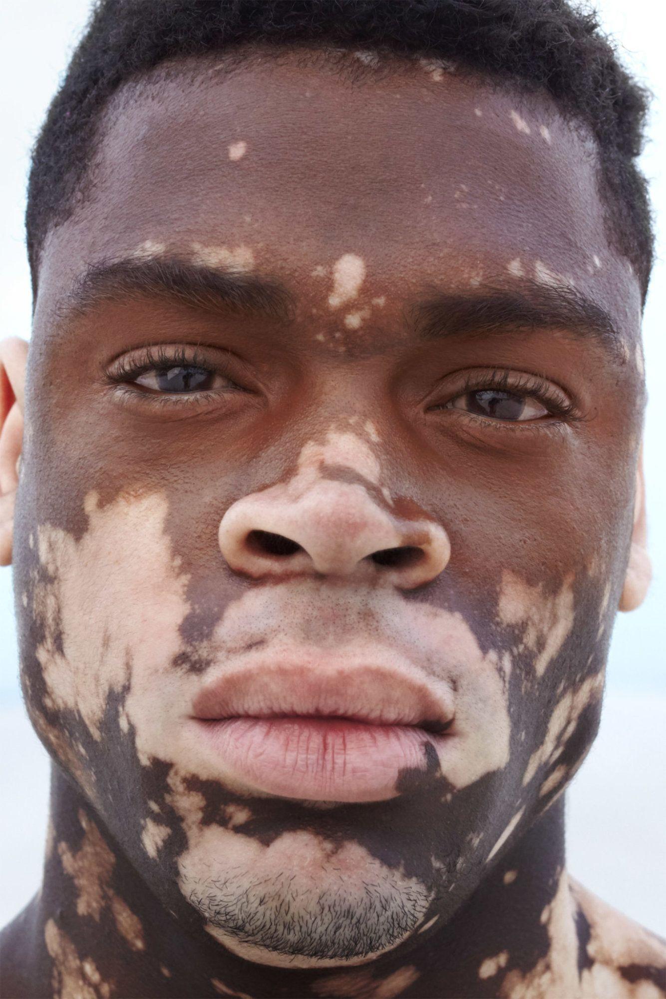 Pin By Rena Grace On Beautiful Men In 2020 Vitiligo Cure Vitiligo Treatment Vitiligo