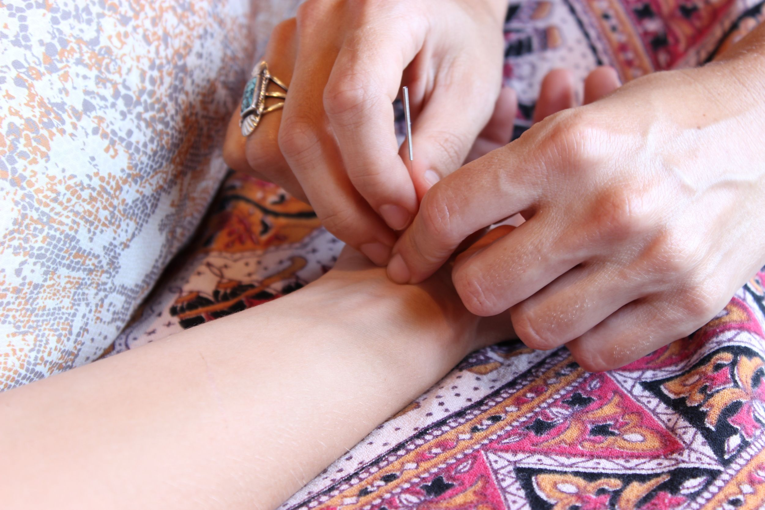 What makes Japanese Acupuncture special. Seed of Life ...