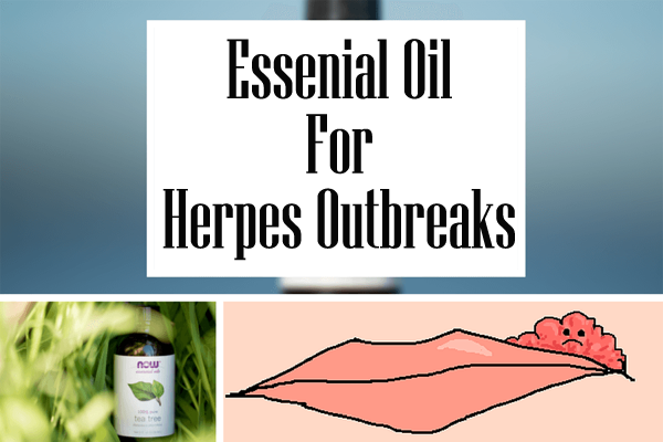 Pin On Eliminate Herpes Fast