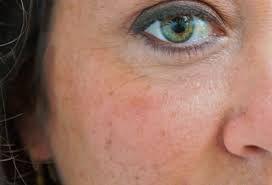 higado y granos en la piel