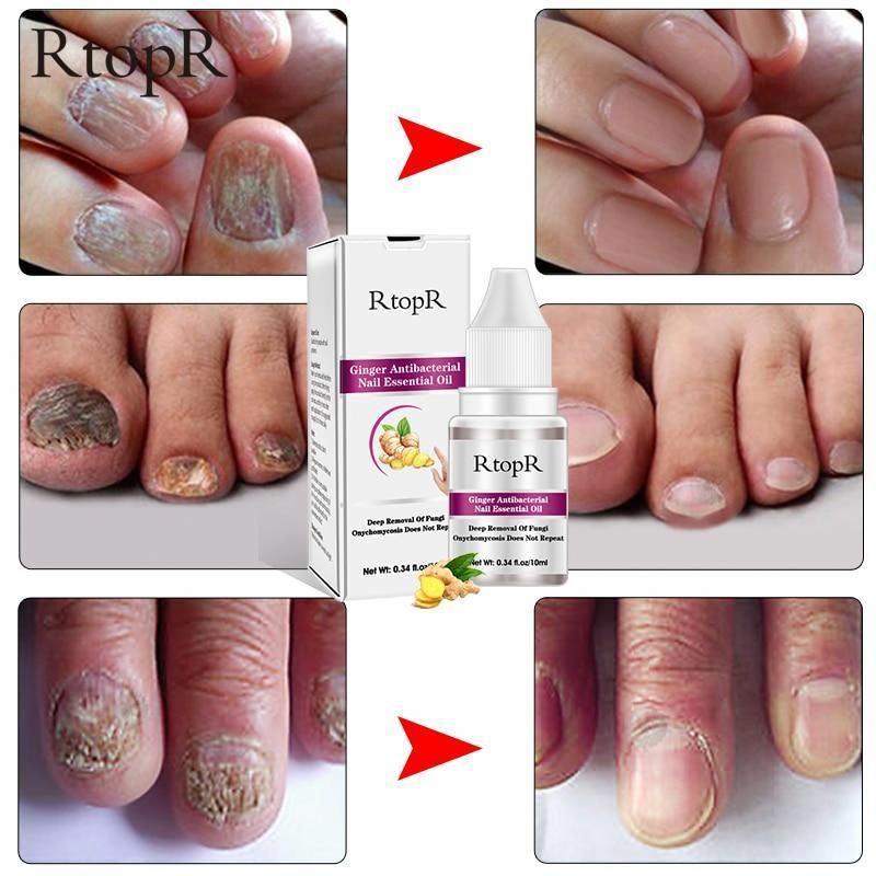 Nail Treatment Onychomycosis Paronychia Antifungal Alibez Com Nailart Nail Treatment Nail Essentials Nails